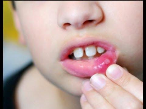 Effective Dua For  Mouth Ulcers And SPORTS