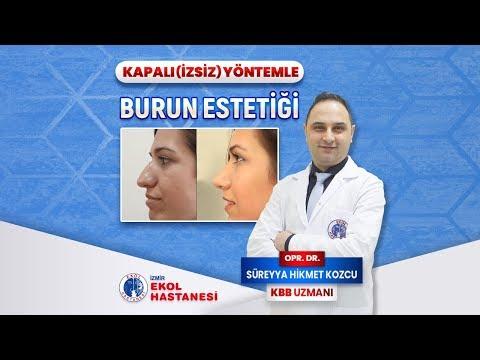 Kapalı (İzsiz) Yöntemle Burun Estetiği - Opr. Dr. Süreyya Hikmet Kozcu - İzmir Ekol Hastanesi