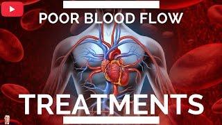 ♥ Poor Blood Flow & Circulation Treatments