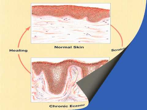A Presentation Detailing Behavioural Modification Treatments for Atopic Dermatitis