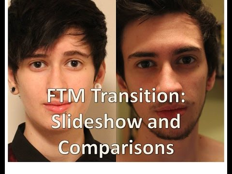ftm - Slideshow and comparisons of my transition I'm now 2 years 10 months on T and 2 years 2 months post top surgery. I have exams over the time I would normally ...