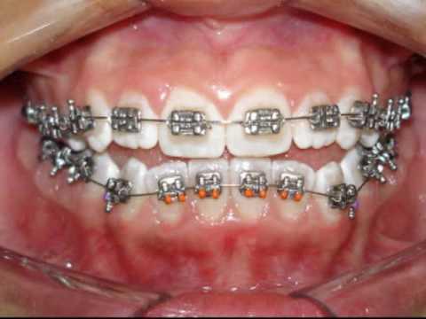 Tratamento ortodôntico - Ortodontia corretiva - Técnica Straight Wire