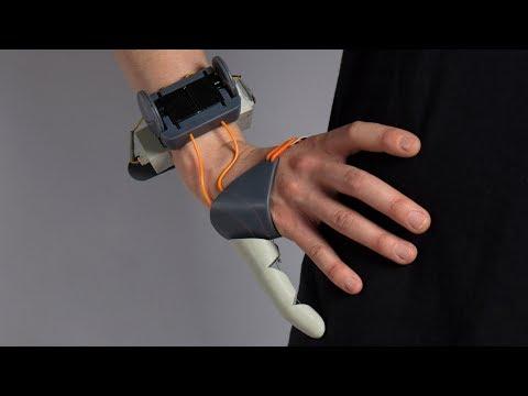Дополнительный большой палец руки