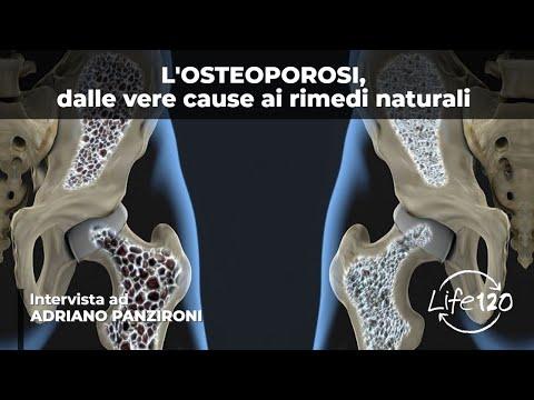 le cause dell'osteoporosi e come curarla naturalmente