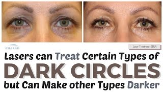 Video Treating Dark Circles - How Lasers can Treat Some Causes, and Other Treatments to Improve Color MP3, 3GP, MP4, WEBM, AVI, FLV Juli 2018