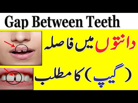 Video Meaning Of Gap Between Teeth In Urdu || Danto K Darmyan Faslay Ka Matlab || General Information download in MP3, 3GP, MP4, WEBM, AVI, FLV January 2017