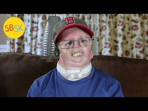 Jeff's Journey (Nager Syndrome)