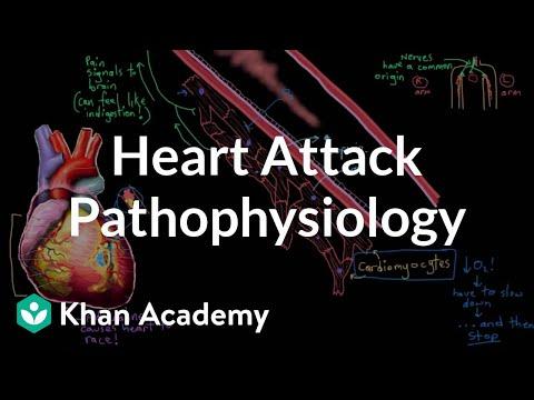 Heart Attack Myocardial Infarction Pathophysiology Video