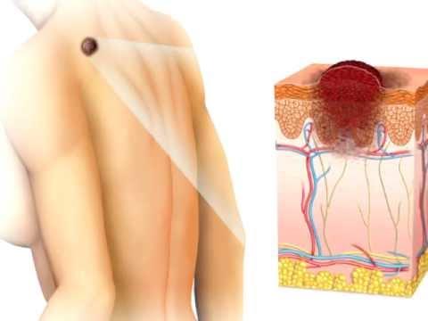MediaPharm - Malignant Melanoma Therapy Gets Personal - Vemurafenib (Zelboraf)