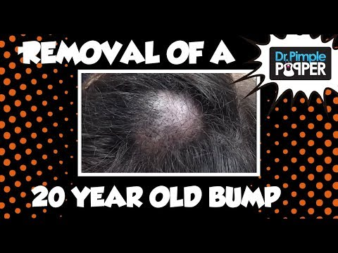 20-Year-Old Bump Excised!