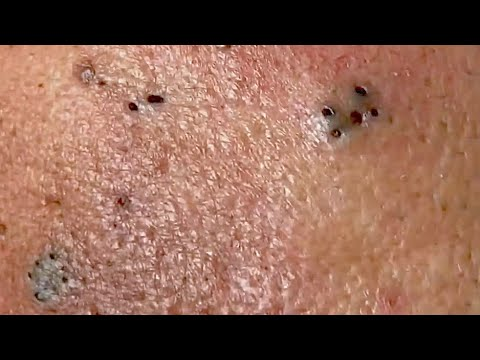 Blackheads . Look at the playlist .🌹Thank you for watching.