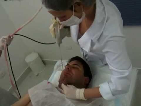 Lipo no pescoço,  sem anestesia !