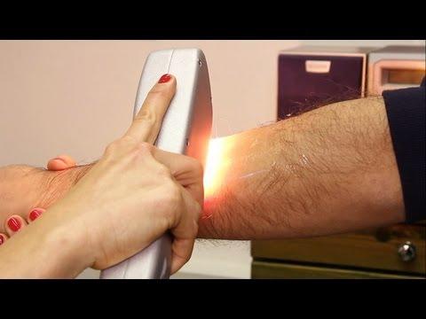 depilazione definitiva con la luce pulsata!