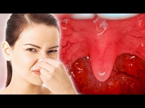 15 Внезапных «За» и «Против» от Неприятного Запаха Изо Рта - DomaVideo.Ru