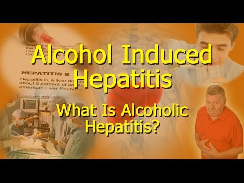 Alcohol Induced Hepatitis – What Is Alcoholic Hepatitis?