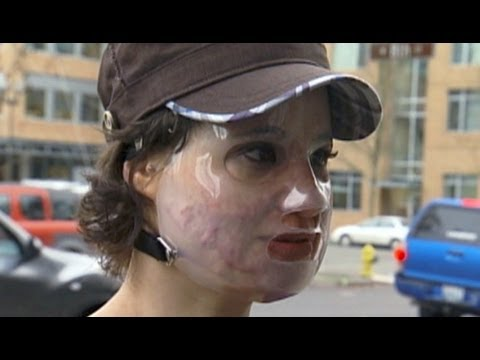 ACID ATTACK HOAX: BETHANY STORRO ADMITS LIE, SAYS SHE SUFFERED FROM A MENTAL ILLNESS