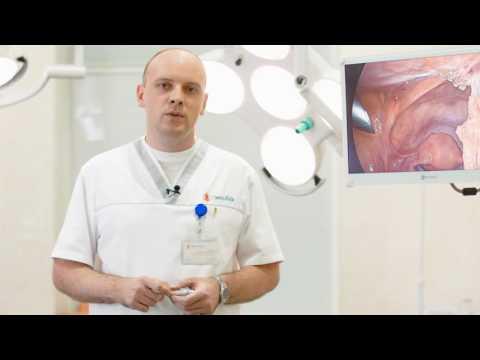 Доброкачественные опухоли матки, центр хирургии Омега-Киев