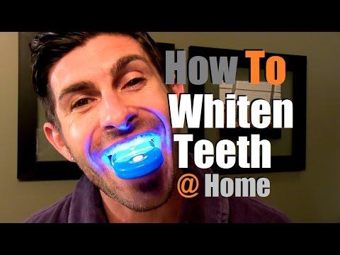 how to whiten smile