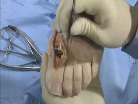 Arthrosurface Toe DF metatarsal resurfacing technique part 3 of 3