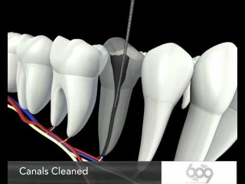 Root Canal Procedure 3D Animation - Endodontics