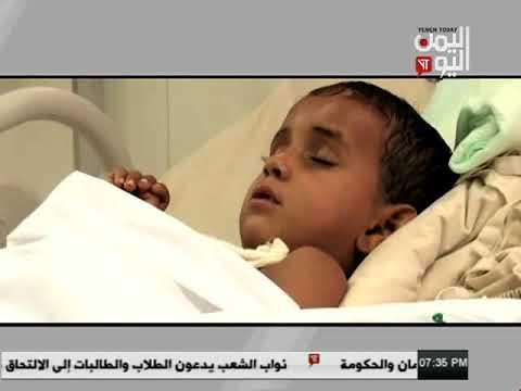 Yemen Today Channel English News 22 10 2017