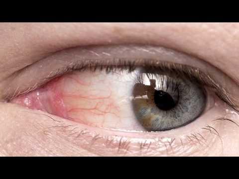 Почему лопаются сосуды в глазах? Что делать и чем лечить!