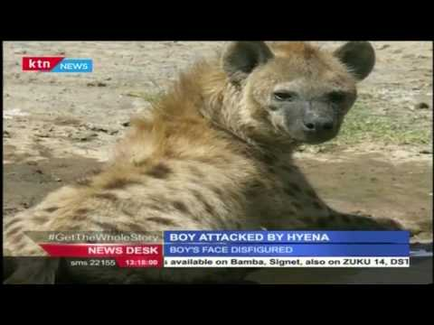 A 15 year old boy was attacked and face disfigured by a Hyena in Kruger Park