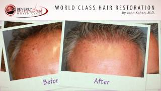 Beverly Hills Hair Restoration Clinic Natural Results Patient Video