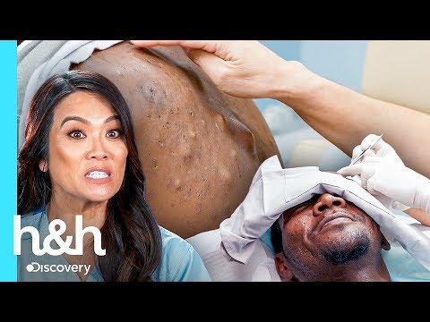Temor a las agujas lo alejó de los médicos | Dra. Sandra Lee: Especialista en piel | Discovery H&H