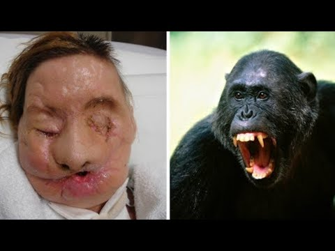 10 Animal Pets That Attacked Their Owner!