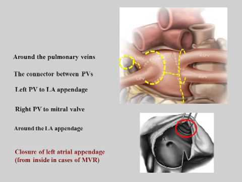 DOES THE OUTCOME IMPROVE AFTER RADIOFREQUENCY ABLATION FOR ATRIAL FIBRILLATION