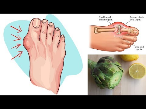 Say Goodbye to Gout and High Uric Acid Levels With This Powerful Home Remedy