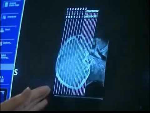 CT - Bildgebung in der Medizin (3/13)