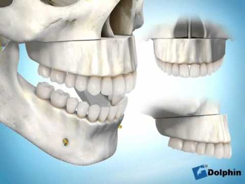 CHIRURGIE IMPACTION MAXILLAIRE