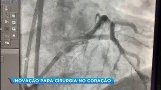 Hospital das Clínicas de Marília realizada procedimento raro de angioplastia