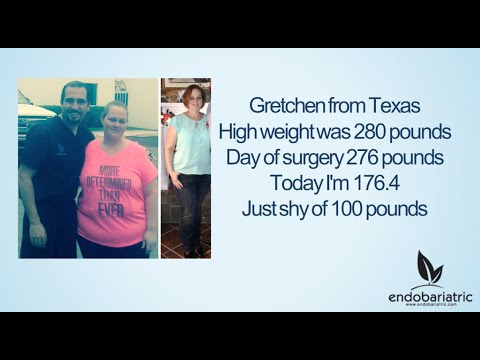 Gretchen's Story | Weight Loss Surgery | Gastric Sleeve Doctor | Texas