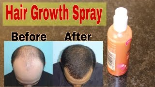 Hair Loss Treatment at home - How To Grow Hair Faster - How To Stop Hair Loss  TANYA  TANYA SAYS  TANYA INDIAN YOUTUBER  TANYA INDIAN BEAUTY BLOGGERINGREDIENTS REQUIRED:- AMLA JUICE / INDIAN GOOSEBERRY ( patanjali amla juice )- GINGER How to treat dark circles overnight  https://youtu.be/bU3reoafGfoShelf life : 1 week in fridgeThis hair spray is great for hair growth, baldness problem , hair loss, itchy scalp , hairfall , dandruff , scalp infection.This is for both men & women.Apply this hair spray everyday to see the results. Apply the hair spray on scalp and massage it for 5 mins & then leave it for overnight and wash it next morning with plain water or mild shampoo .Use this regularly and see major difference in hair fall & hair loss.********************************Follow me :Instagram @tanya.sayshttps://instagram.com/tanya.says/Snapchat: tanya.saysFacebook pg:https://m.facebook.com/tanyasaysbeauty?ref=bookmarks Twitter @TanyaSays31***************************************Click here to make 100% pure rose water at home in 5 minutes https://youtu.be/AMnooZ7AhfwDon't forget to like the video & share it with your friends.YOU MAY ALSO LIKE THESE VIDEOS :DIY Eye Cream  How to treat dark circles overnight  https://youtu.be/bU3reoafGfoDIY GREEN TEA TONER  GET CLEAR & GLOWING SKIN AT HOMEhttps://youtu.be/EKDY4mHf8N0HOW TO USE LEFT OVER GREEN TEA AS SCRUB FOR FACE & BODY AT HOME https://youtu.be/UrRaRSe1674Rs. 99 LIQUID LIPSTICK https://youtu.be/ocB0o0E92h0How to get rid of pimples / acne scars / dark skin / hyper pigmentation  Face pack for glowing skin  https://youtu.be/fWXjC-kKPmUFace Pack for Glowing Skin , Removing Tan & Anti aging / Detan face mask for men & women  https://youtu.be/rgoo9hhmm5gTop 12 ways to use Patanjali Aloe Vera Gel for Face & Hair  https://youtu.be/qzrndD_2MZwMakeup Under Rs 500  Affordable makeup products in India  Part 1      https://youtu.be/kaz2dAU21CIMakeup Under Rs 500  Affordable makeup products in India  Part 2    https://youtu.be/IFQjfr6d8CUFace Pack for Glowing Skin , Removing Tan & Anti aging / Detan face mask for men & women  https://youtu.be/rgoo9hhmm5gHow to Remove Sun Tan from Face, Neck & Body at Home  https://youtu.be/KvUNAoXyVNAAnti Aging Skin Care / Home Remedy to prevent wrinkles, fine lines, dark Spots / DIY COFFEE SCRUB https://youtu.be/ZV2HB14u0eYHow to get pink lips naturally at home  DIY Lip Scrub  https://youtu.be/ZZDFrL8Umds*************************************BENEFITS:This hair spray can be used by both men & women to reduce hair loss or hair fall, prevent premature greying of hair, grow hair in bald patches, hair loss treatment, hair loss treatment at home for women, hair loss treatment at home for men.It is a hair loss solution, hair loss cure, hair fall treatment, hair fall treatment at home, hair fall treatment for women, hair fall treatment for men, hair fall remedy, hair fall control tips in hindi.Try this for hair fall solution.use 2 times a day for hair fall control at home.i hope this helps you.It is Ayurvedic home remedies for hair growth.***************************************
