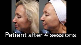 Microneedling in Irvine from Skin and Beyond Medical Spa