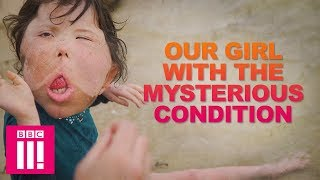 Video Our Girl With The Rare Condition That Doctors Have Never Seen | Living Differently MP3, 3GP, MP4, WEBM, AVI, FLV Maret 2019
