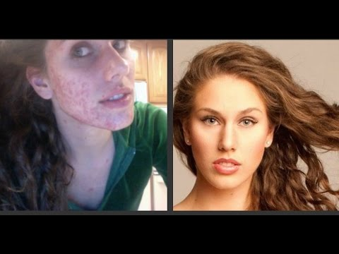 What Is Cystic Acne? Causes? Treatment? | Cassandra Bankson