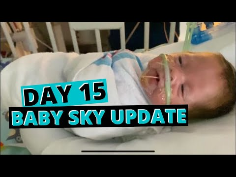 DAY 15 - Rough Couple of Days for Our Little Man