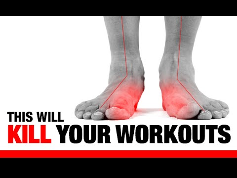 Feet - Fix your feet and start training like an athlete here… http://athleanx.com/x/strong-from-the-ground-up Flat feet are common, occurring in almost 20 percent o...