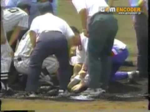 「[野球]衝撃!高校野球の試合での頭部直撃ピッチャーライナー。」のイメージ