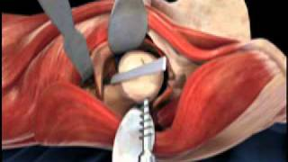 Femoral Head Osteotomy Animation - Direct Anterior Total Hip Replacement