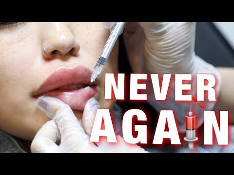 OMG I CAN'T BELIEVE I DISSOLVED MY LIP FILLER!!!!!!!! (видео)