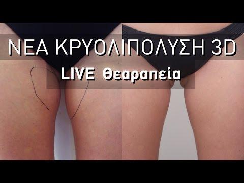 Νέα Κρυολιπόλυση 3D - Live Θεραπεία
