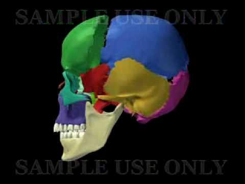 Huesos de Cráneo en español (sample use only)