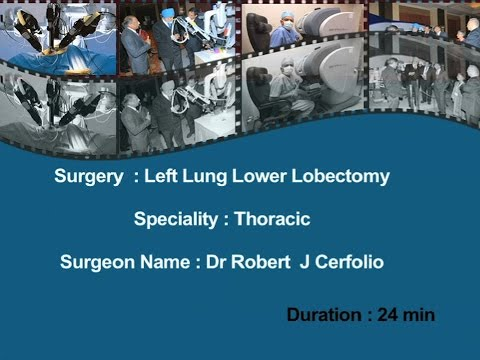 Left Lung Lower Lobectomy