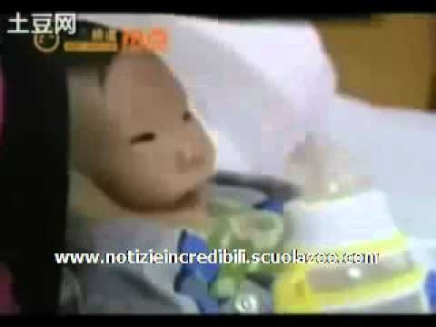 kang kang, il bambino cinese nato con la maschera al volto!