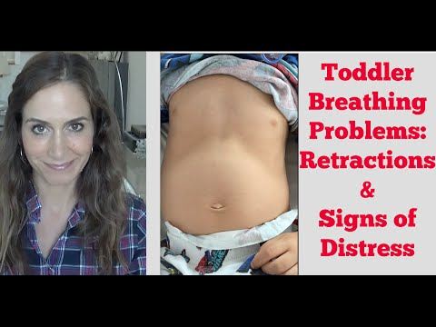 Toddler Breathing Problems: Retractions & Signs To Look For!